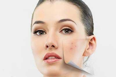 چگونه چرب شدن پوست را به عقب بیندازیم؟, چرب شدن پوست, چگونه چرب شدن پوست را به عقب بیندازیم؟