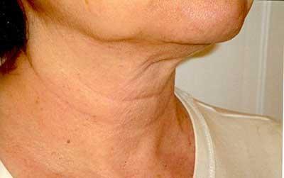 چطور از افتادگی پوست گردن جلوگیری کنیم؟, How to avoid sagging neck skin?, جلوگیری از شل شدن و افتادگی پوست گردن, چطور از افتادگی پوست گردن جلوگیری کنیم؟, شل شدن و افتادگی پوست گردن