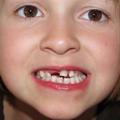 روشهای مراقبت از دندان شیری کودکان, بچه, بچه داری, تربیت فرزندان, فرزند, فرزندان, کودک, کودکیاری, نکات تربیتی