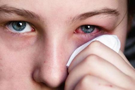 آب ژاول,مضررات آب ژاول,التهاب چشم