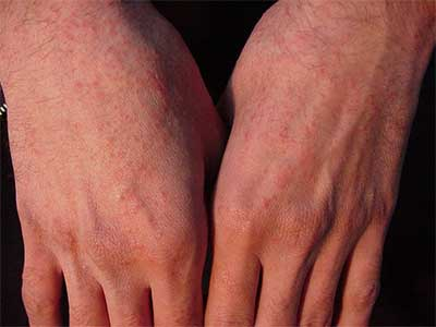 انواع حساسیت پوستی