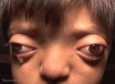 دختری با عجیب ترین چشم ها (عکس), جالب