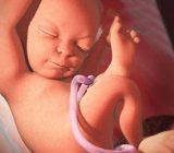 بند ناف تک شریانی چیست و آیا باعث سقط جنین می شود؟