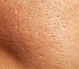 بهترین درمان برای منافذ پوست
