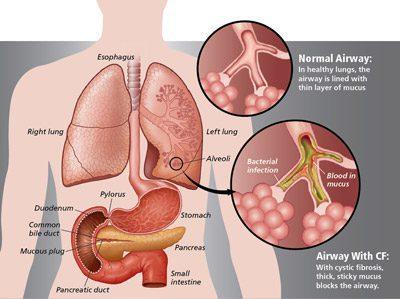 علل، علائم و درمان فیبروز ریوی, بیماری و راه درمان