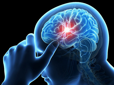 علایم سکته مغزی, علائم سکته مغزی