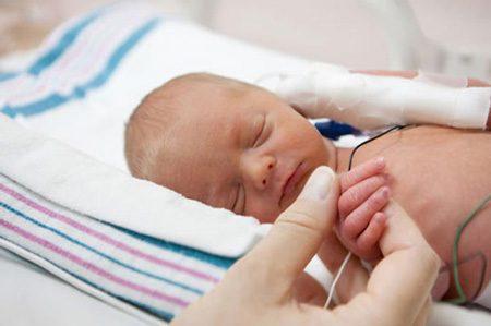 همه چیز درباره نوزادان نارس, women, خانم, خانم ها, زن, زنان, زنانه, مسائل مربوط به زنان, نکات زنان