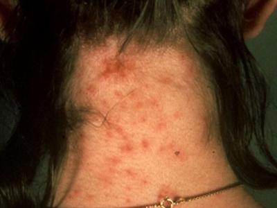 حساسیت به نیش حشرات, درمان جای نیش حشرات