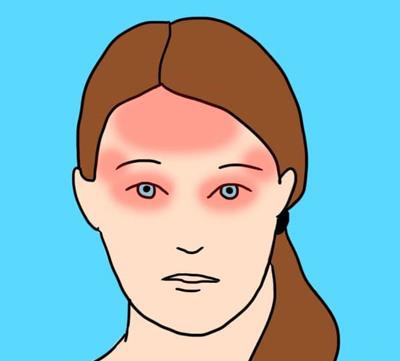 انواع سردرد میگرنی, علت انواع سردرد