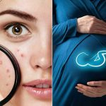 جوش زدن در دوران بارداری