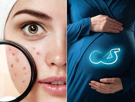 بهترین جوش زدن در دوران بارداری چیست؟